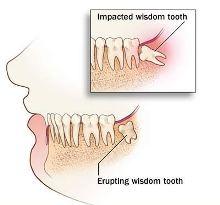 wisdom_teeth.html